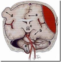 perdarahan otak